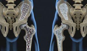 alti livelli di calcio non garantiscono le ossa sanerantiscono