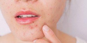 L'acne colpisce sempre più adulti