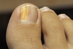Qualsiasi infezione alle unghie non va mai sottovalutata
